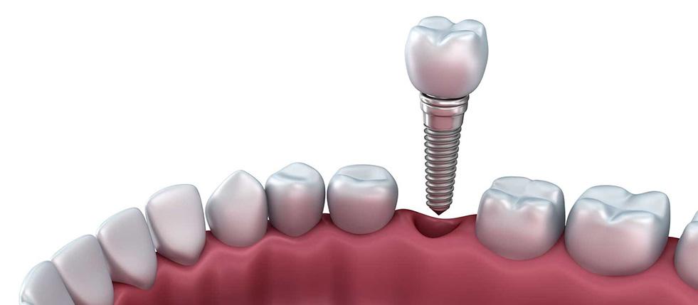implantes-dentarios2