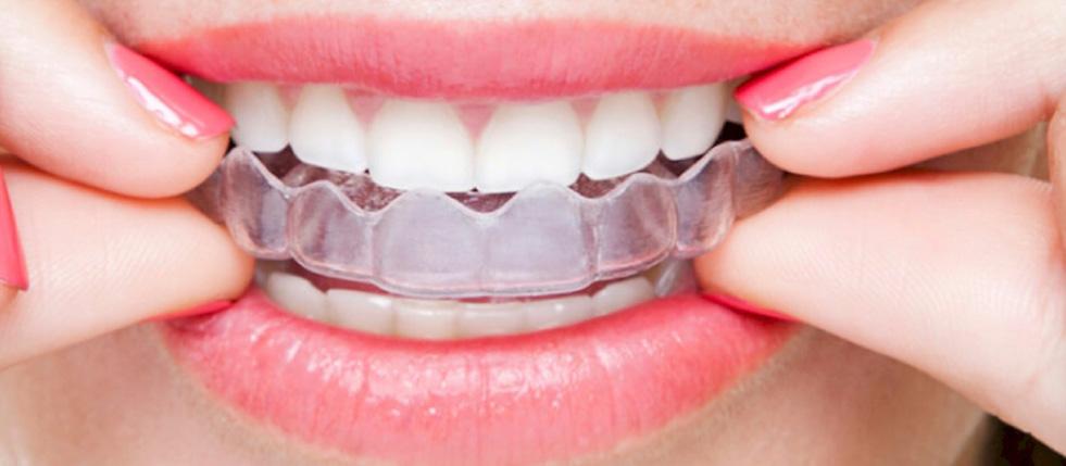 aparelhos-dentários2