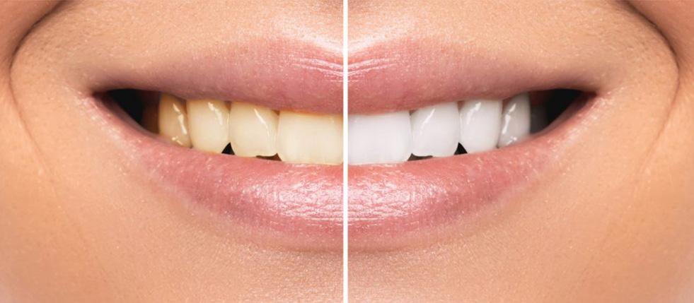 clareamento-dental2
